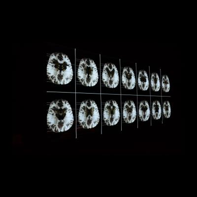 Suzanne Anker,Butterfly in Brain,灯箱